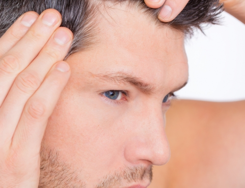 What Is Dandruff?